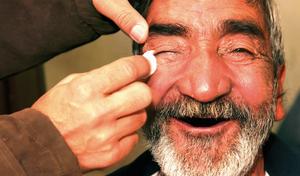 Cataract Surgery  - Jordan